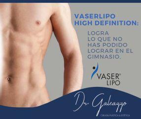 Liposuccion Lipoescultura - Dr Galeazzo