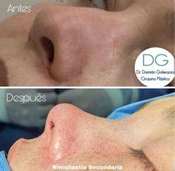 Rinoplastia sin cicatriz - Dr. Damián Galeazzo