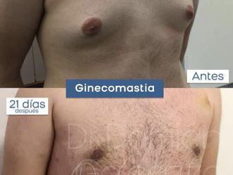 Ginecomastia - 785705