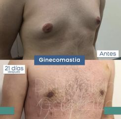 Ginecomastia  - Dr. Damián Galeazzo
