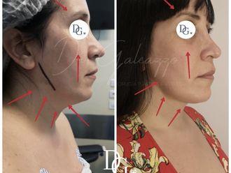 Rejuvenecimiento facial-785706