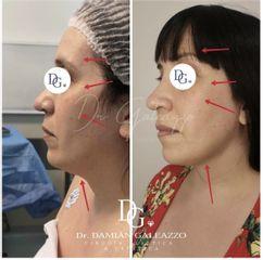 Rejuvenecimiento facial - Dr. Damián Galeazzo