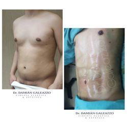 Marcación abdominal - Dr. Damián Galeazzo