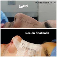 Rinoplastia Sin cicatriz. - Dr. Damián Galeazzo