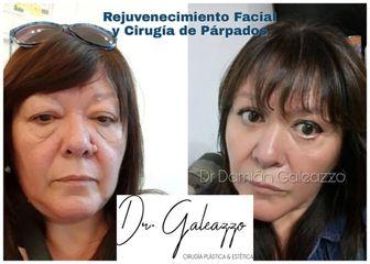 Blefaroplastia - Dr. Damián Galeazzo
