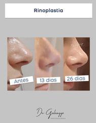 Rinoplastia - Dr. Damián Galeazzo