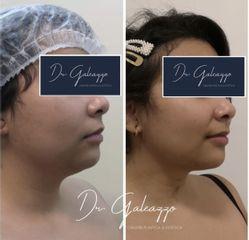 Liposucción de papada Renuvion Facial - Dr. Damián Galeazzo