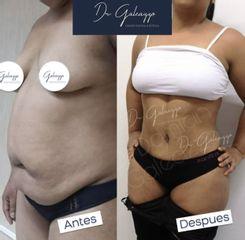 Abdominoplastia - Dr. Damián Galeazzo