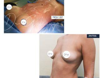 Aumento mamas - 791294