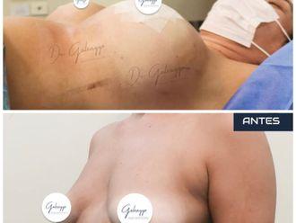 Aumento mamas-791295