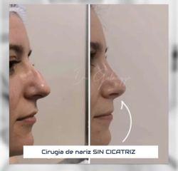 Rinoplastia - Dr Damián Galeazzo y Equipo