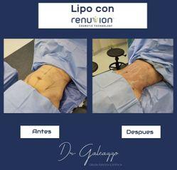 Lipo+Renuvion - Dr Damián Galeazzo y Equipo