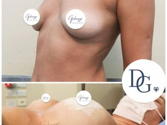 Aumento mamas - 799976