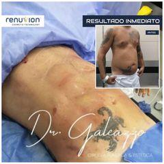 Liposucción - Dr Damián Galeazzo y Equipo