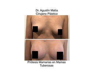aumento mamas antes y despues - dr. agustin matia
