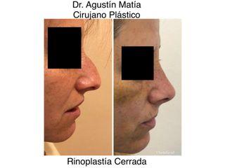 rinoplastia antes y despues - dr. agustin matia