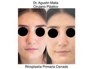 Dr. Agustín Matia - Rinoplastia