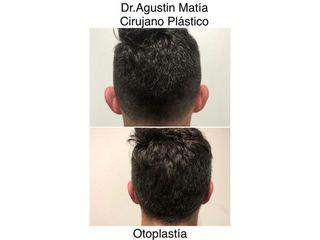 Otoplastia - Dr. Agustín Matia