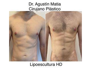 Lipoescultura HD - Dr. Agustín Matia