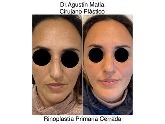 Rinoplastia-689953
