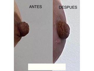 Aumento mamas - Dr. Agustín Matia