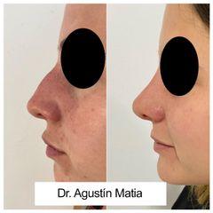 Rinomodelación - Dr. Agustín Matia