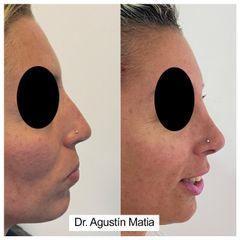 Rinoplastia - Dr. Agustín Matia