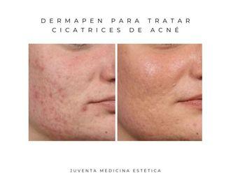 Tratamiento acné - 661960