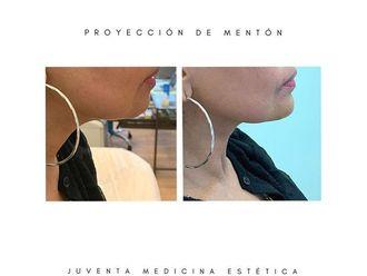 Rejuvenecimiento facial-694887