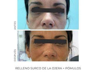 Rellenos faciales-694894