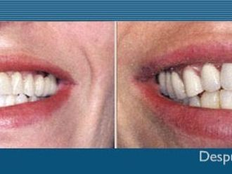 Prótesis dentales-275587