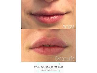 Relleno de labios - Dra. Julieta Settecasi