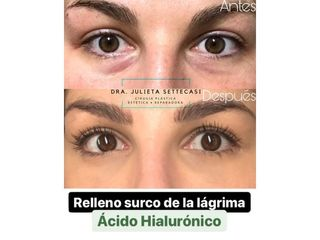 Ácido hialurónico - Dra. Julieta Settecasi