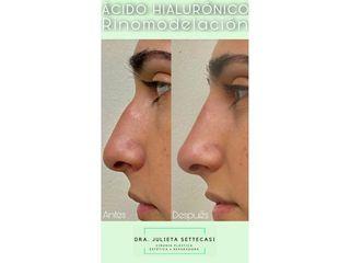 Rinomodelación - Dra. Julieta Settecasi