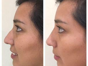 Estética de nariz sin cirugia