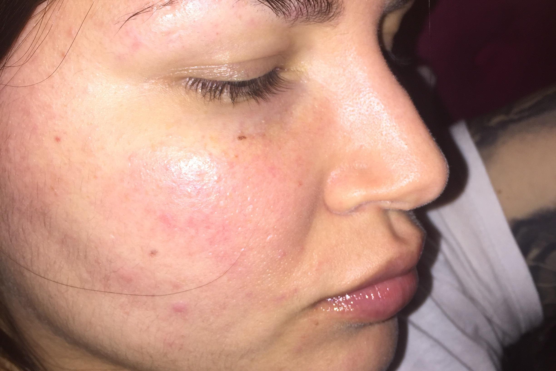 Busco dermatologa por ZN - 5758