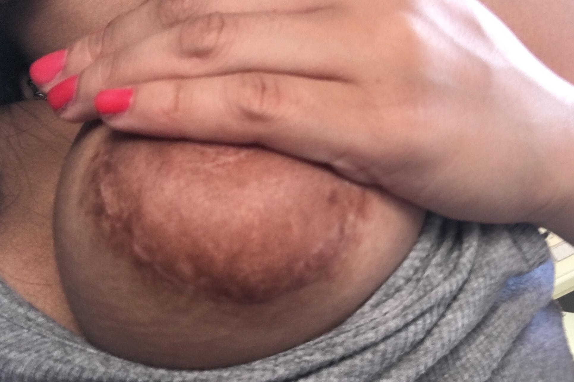 Cicatriz mamoplastia - 5859