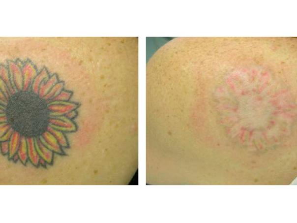 Antes y después de la eliminación de tatuaje.