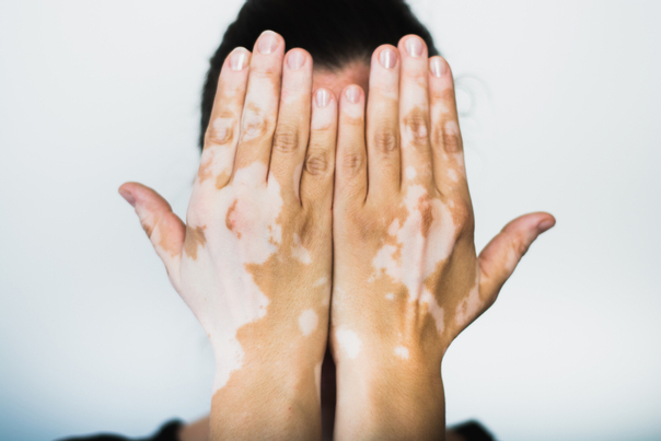Representación de piel con vitiligo.