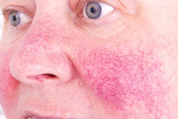Tratamiento para la rosácea o inflamación cutánea.
