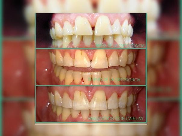 ¿Cómo saber si sos candidato a la ortodoncia invisible?