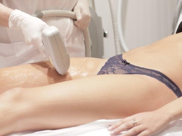 Cómo se realiza la depilación láser