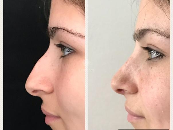 Técnicas de la cirugía de la nariz