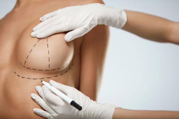 Primera visita al cirujano plástico para mamoplastia de reducción.