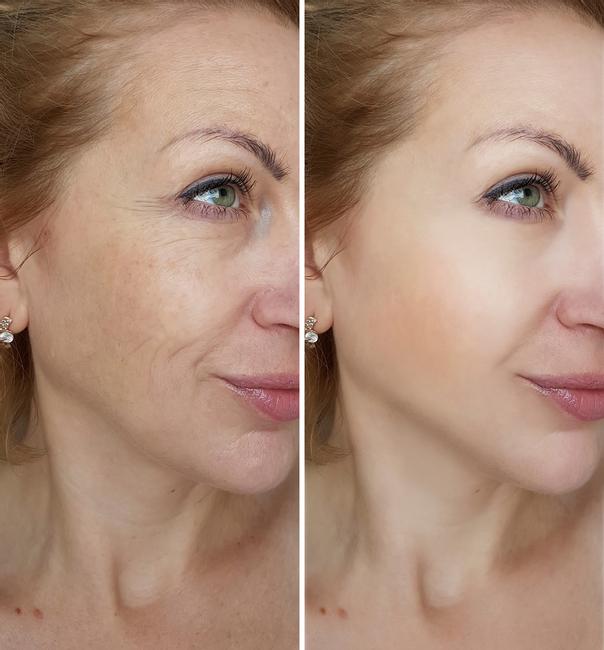 Rejuvenecimiento facial quirúrgico.