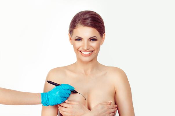 Proceso preoperatorio de la reducción mamaria.