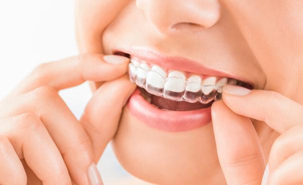 Félulas dentales para realizarse el blanqueamiento dental