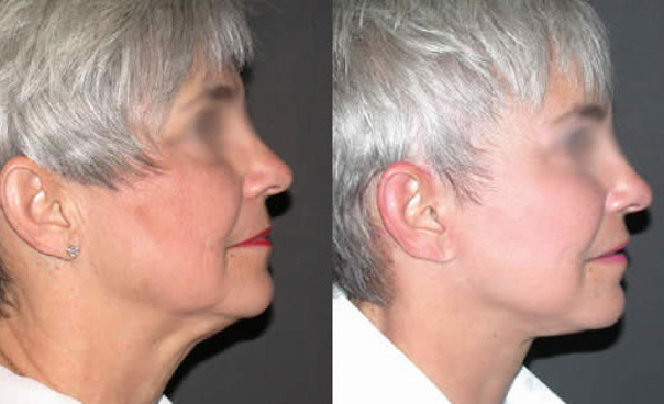 Recuperación del tratamiento de rejuvenecimiento facial.