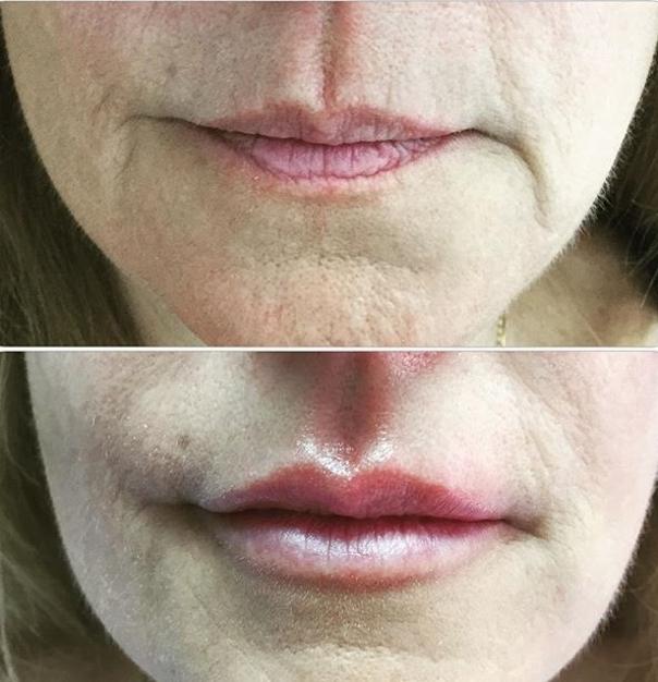 Beneficios del rejuvenecimiento facial.