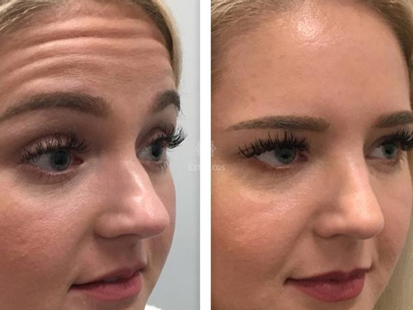 El Botox